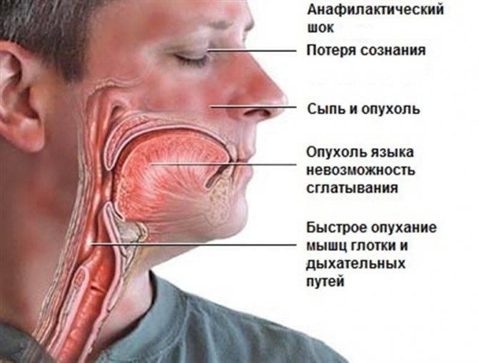 Почему болит носоглотка и как лечить этот симптом?