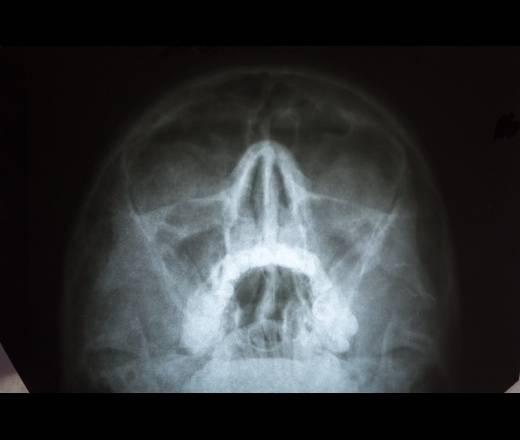 Хронический гайморит – симптомы, лечение у взрослых и детей