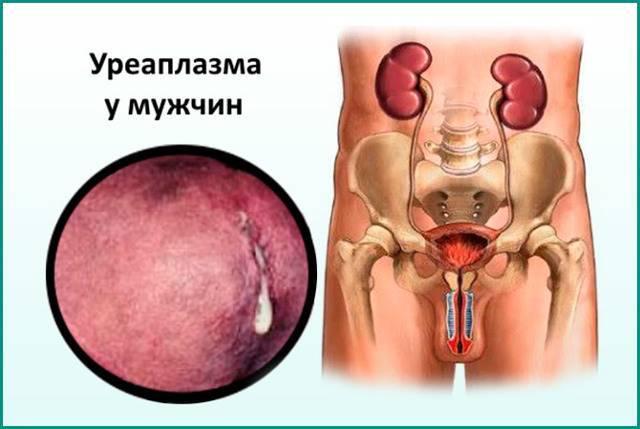 уреаплазмоз симптомы у мужчин