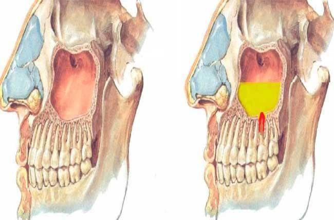 кисты в гайморовых пазухах симптомы