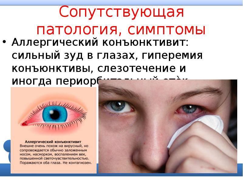 Разновидности аллергического конъюнктивита у детей, его признаки, причины и лечение