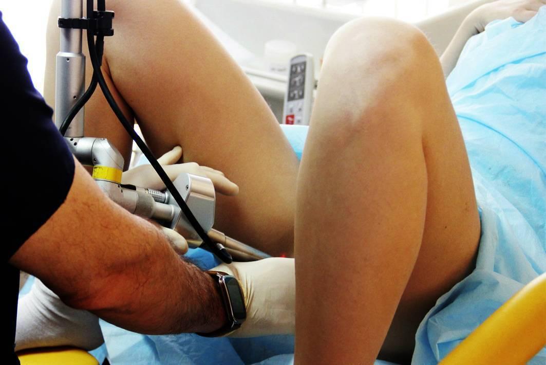 Преимущества удаления геморроя лазером | москва