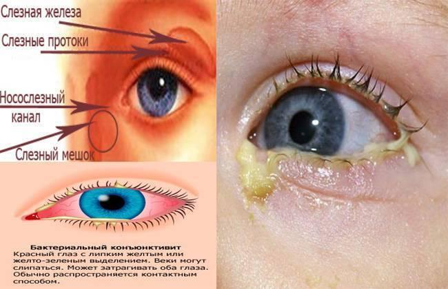 Белые выделения в углах глаз: причины появления и лечение