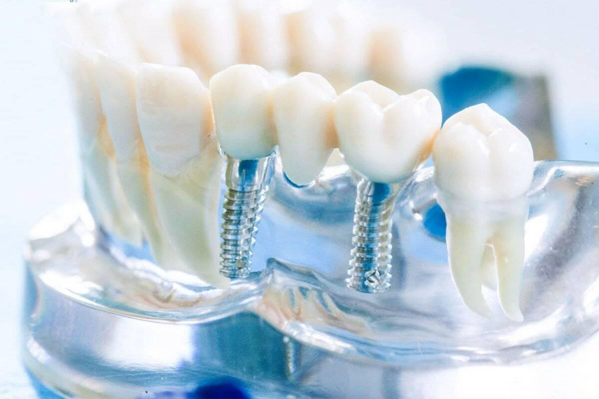 стоматология протезирование
