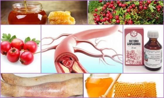 Лечение атеросклероза сосудов нижних конечностей народными средствами