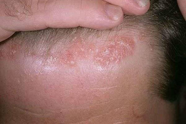 Себорейный дерматит: советы практикующего трихолога