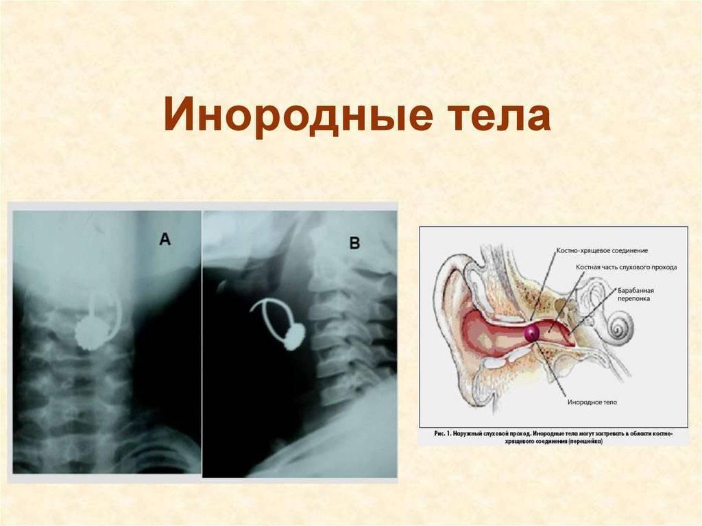 инородные тела уха