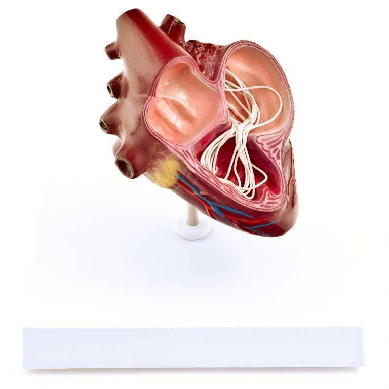 Паразиты в сердце человека симптомы и лечение