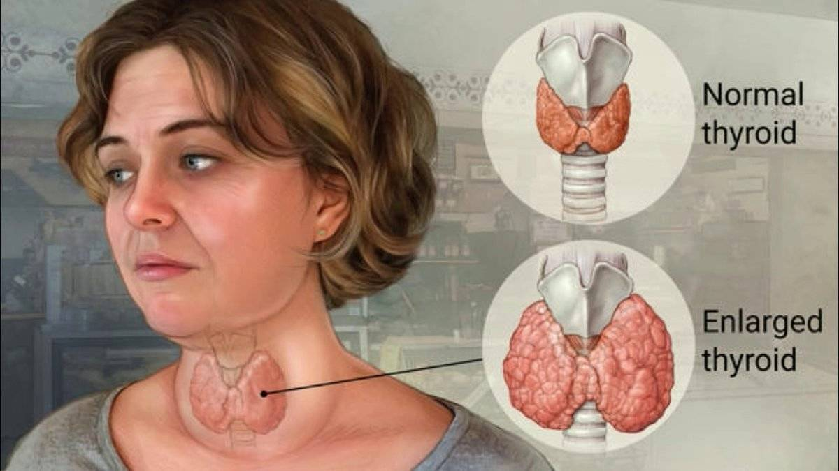 Где находится щитовидка – расположение на фото