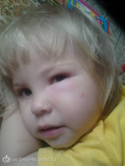 у ребенка после укуса комара опухло веко
