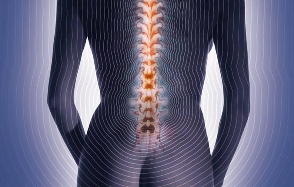 невралгия в пояснице симптомы