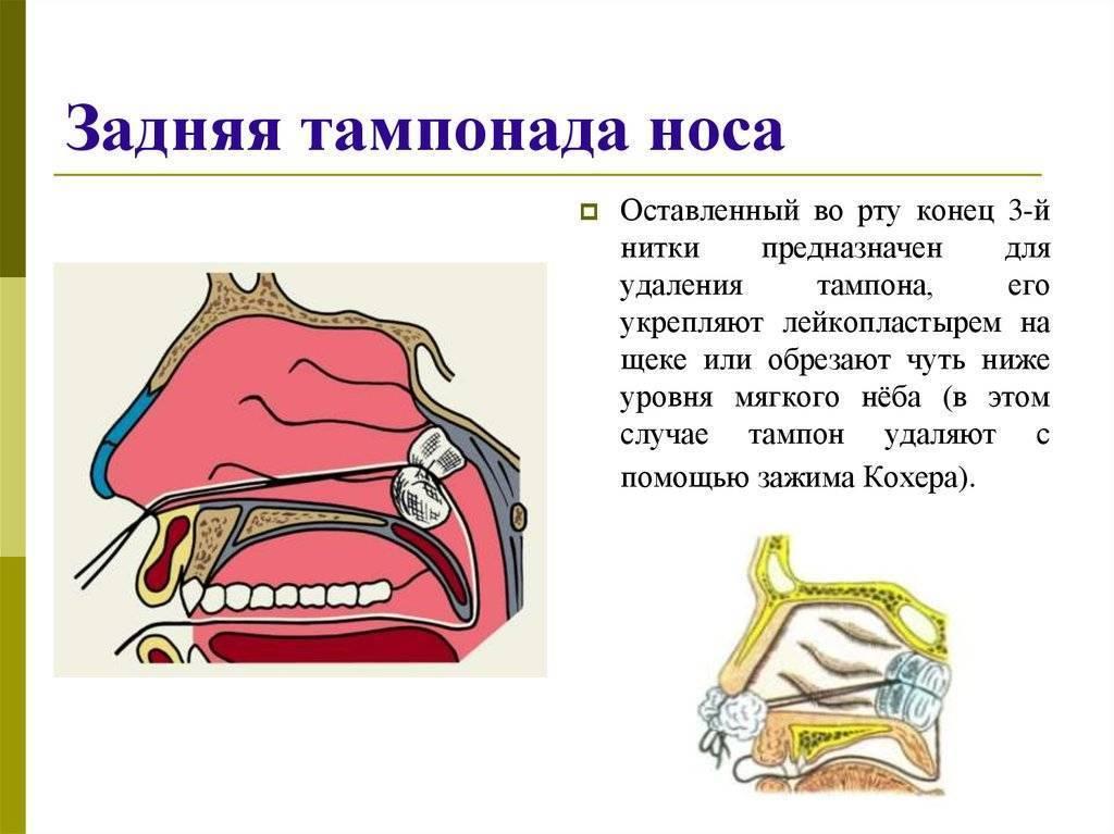 Турунды в нос: как правильно делать. турунды в нос при гайморите