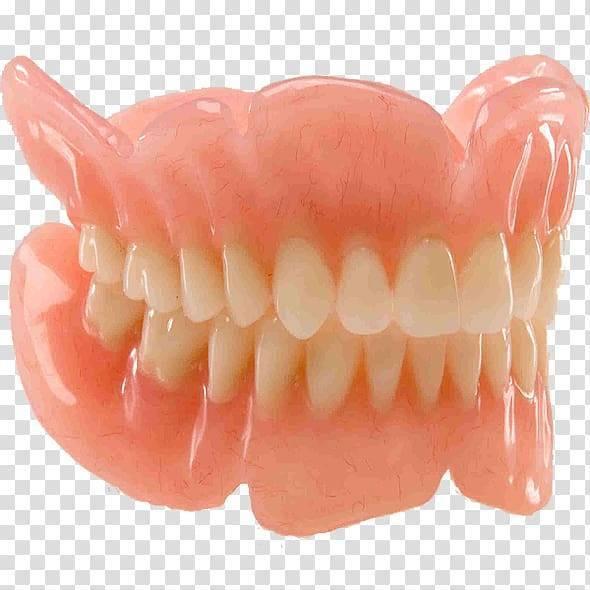 Пластмассовые протезы — плюсы и минусы протезирования зубов пластмассой