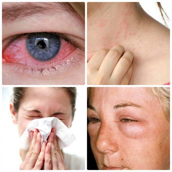 Аллергический конъюнктивит — как распознать и вылечить опасную патологию
