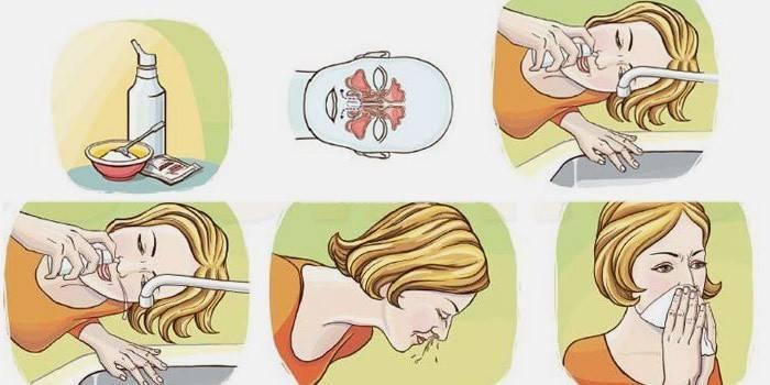 как промыть нос физраствором в домашних условиях