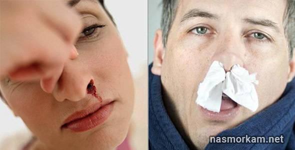 в носу постоянно образуются корки с кровью
