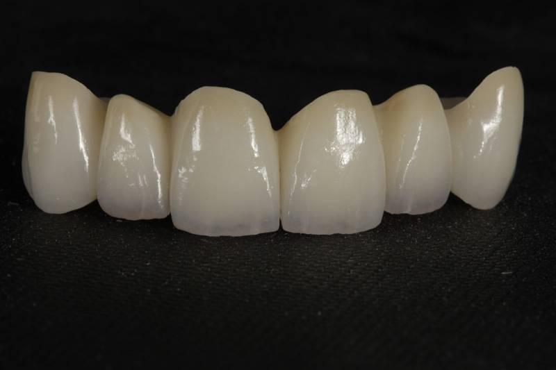 Мостовидный адгезивный протез: протезирование без обточки зубов, обзор цен
