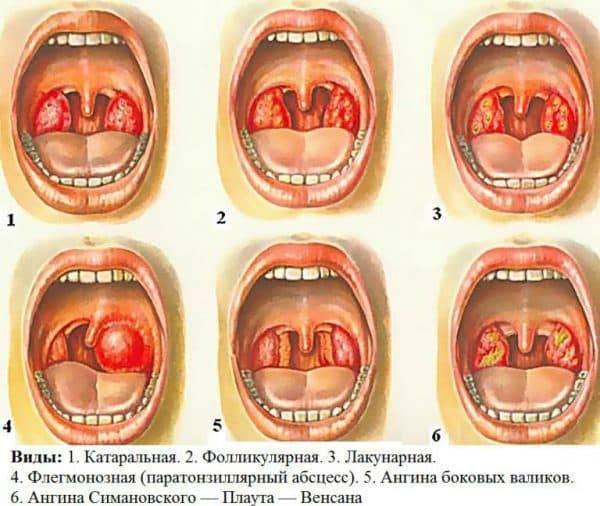 Ангина и тонзиллит: в чем разница