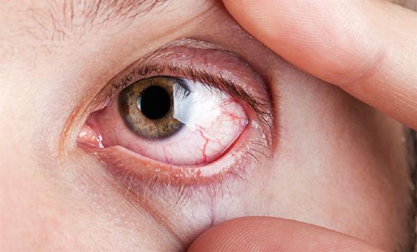 Ушиб глаза: симптомы и лечение