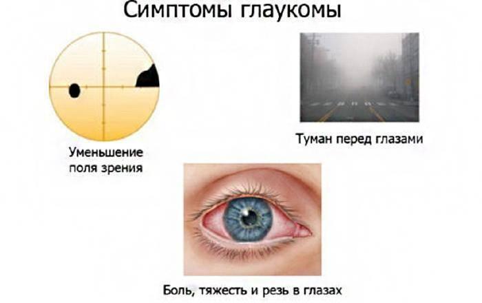 Лечение глаукомы народными средствами: эффективные методы