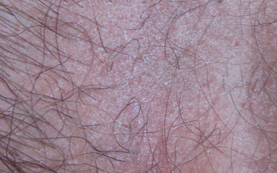 Дерматит на половых органах: виды, причины, лечение
