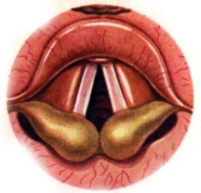 Аллергический фарингит: причины, симптомы, методика лечения и возможные осложнения