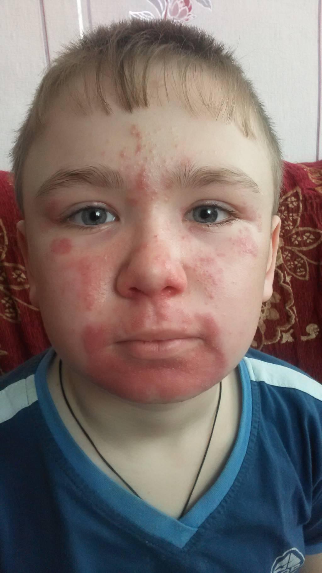 атопический дерматит на лице у взрослых