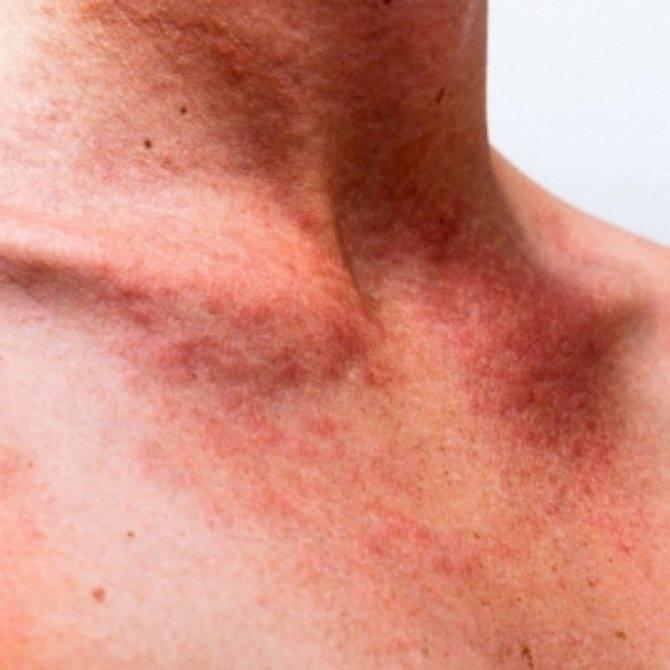 Симптомы и лечение дерматита на нервной почве
