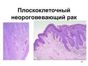 плоскоклеточный рак гортани 4 степени
