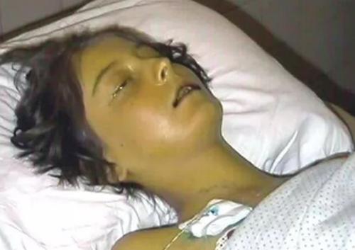 Как и когда наступает смерть от цирроза, какие у него симптомы и последствия
