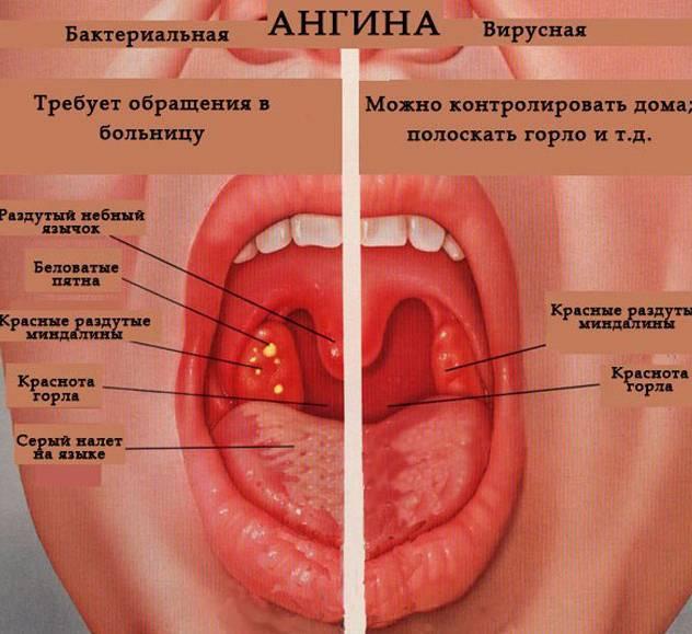 как сделать так чтобы горло стало красным