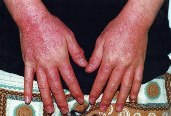 Аллергический зуд кожи: чем снять в домашних условиях, мази, таблетки