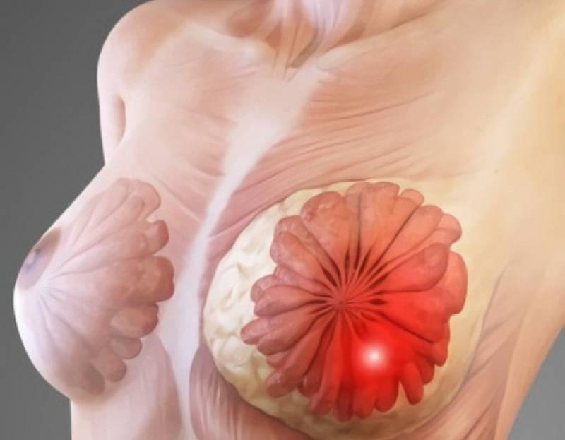 беременность при мастопатии фиброзно кистозной