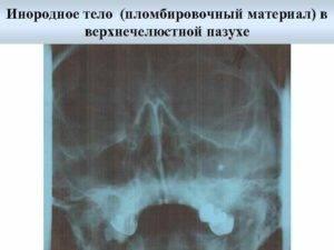 Лечение одонтогенного гайморита. отзывы пациентов. что это такое?