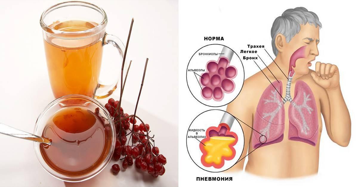 Трахеит в третьем триместре... - запись пользователя panama10 (panama10) в сообществе здоровье будущей мамы и малыша в категории боли, орви, грипп - babyblog.ru