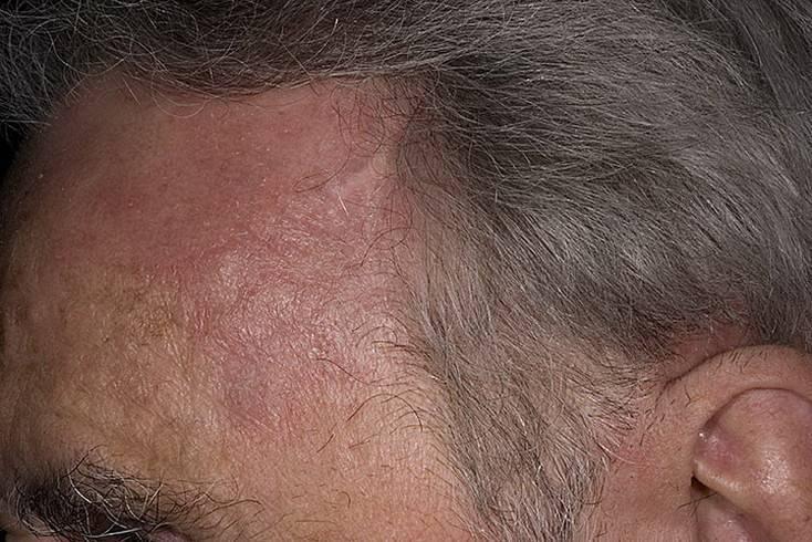 Можно ли себорейный дерматит вылечить навсегда на голове