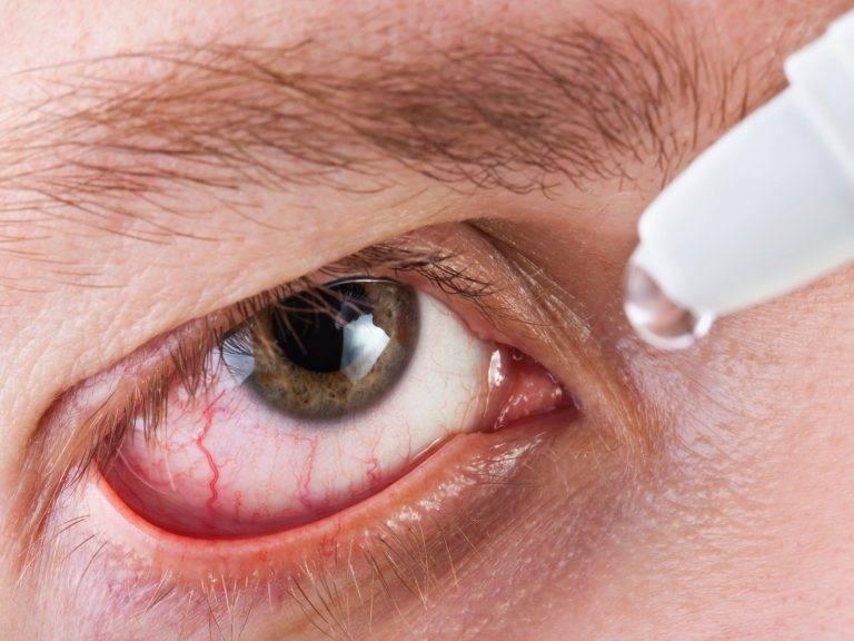 Красные глаза после ношения линз