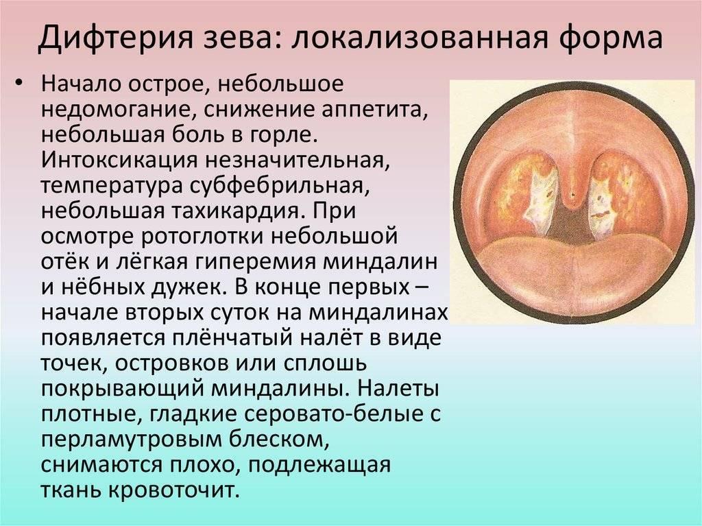 Дифтерия у детей: симптомы, лечение и осложнения