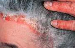 Как различить лишай и дерматит