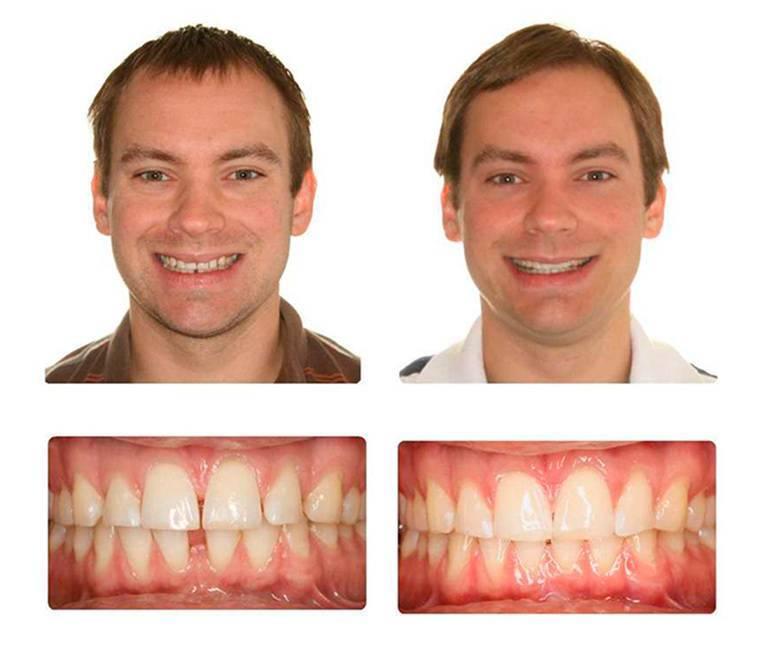 Зубы после брекетов: как закрепить результат?