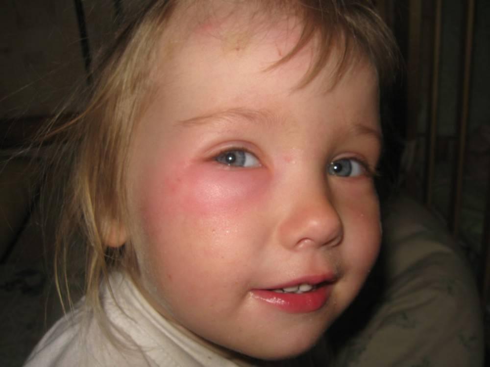у ребенка опух глаз верхнее веко лечение