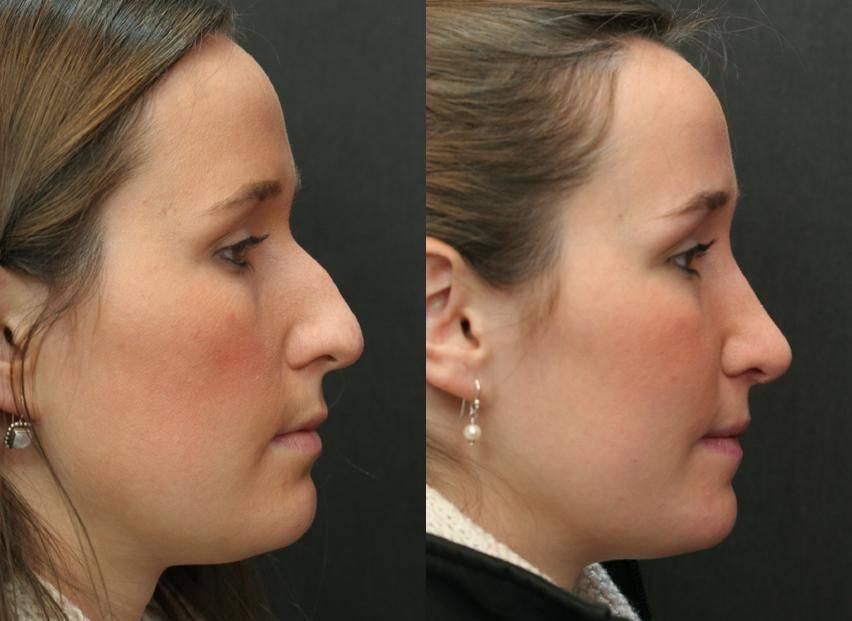 как приподнять кончик носа без операции
