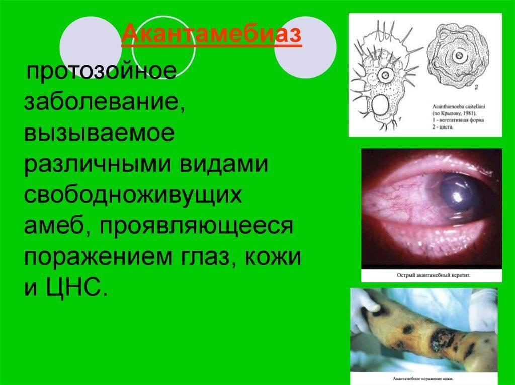 Протозойные инфекции – что это?