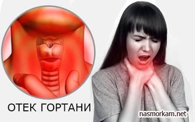 Отёк гортани: симптомы, причины возникновения, лечение