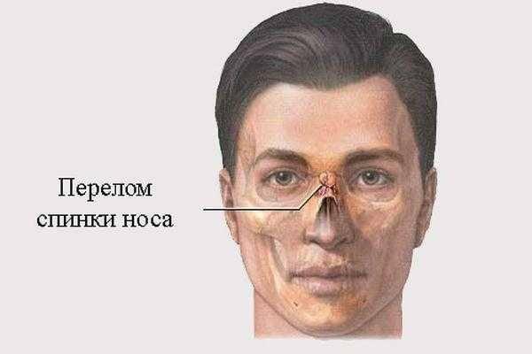 Репозиция костей носа: что такое перелом носа со смещением и как его лечат