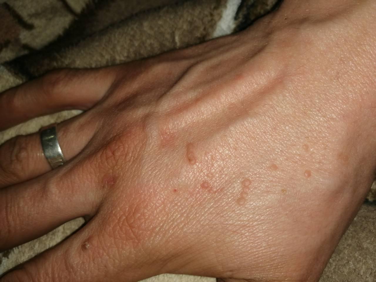 Может ли быть дерматит при глистах