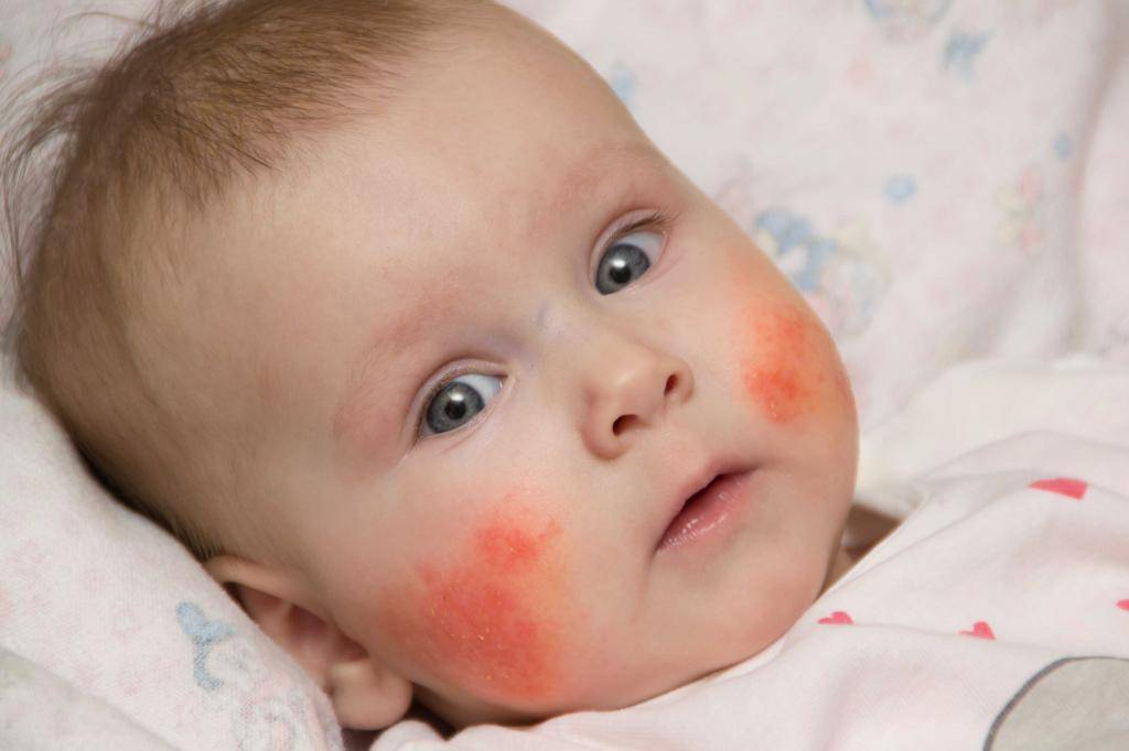 Атопический дерматит у ребенка: лечение медикаментами и народными средствами / mama66.ru