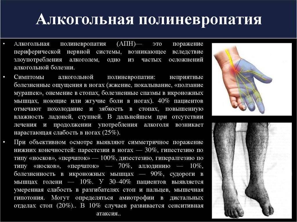 полинейропатия симптомы