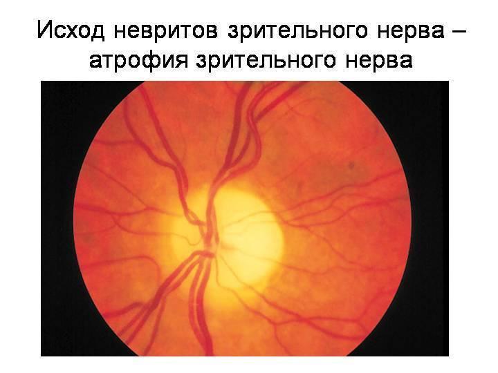Понятие и особенности лечения ретробульбарного неврита зрительного нерва