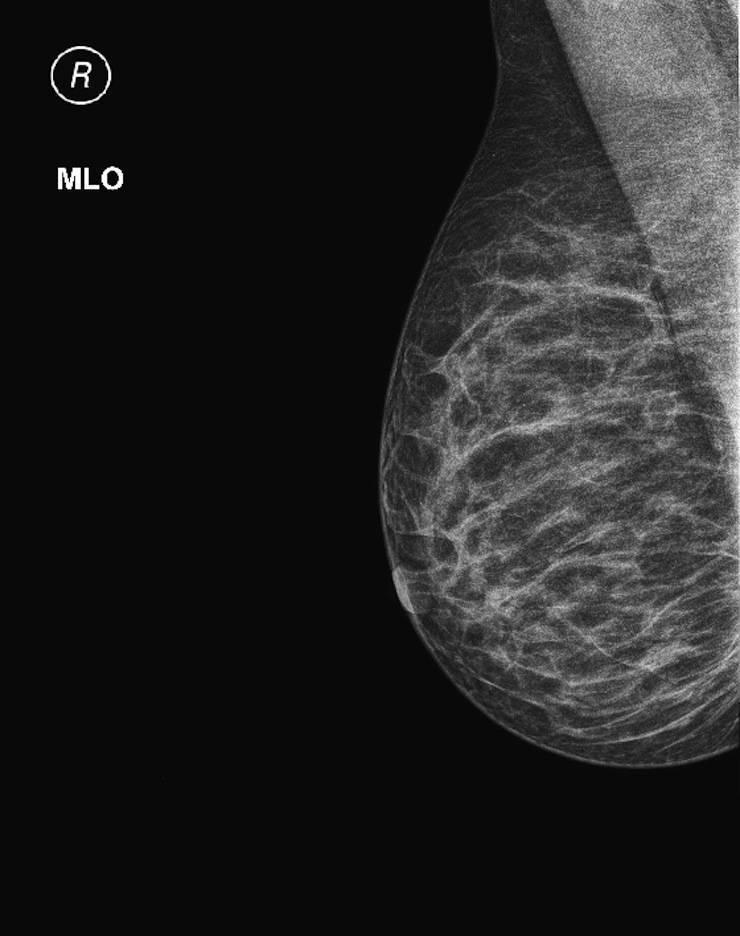 узи молочной железы или маммография